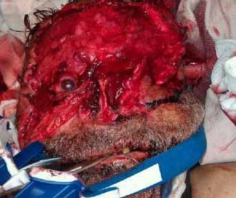 zombie apocalypse gruesome horrific graphic violence photos of 70% of nude man eats face victim pic in Miami FLA